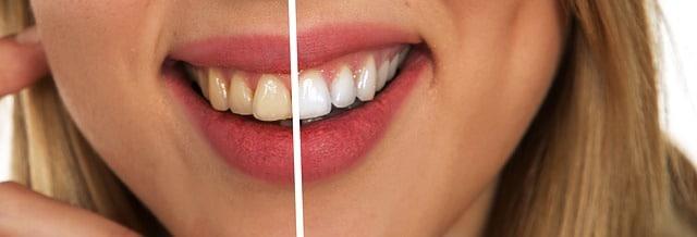 Holistische Zahnärztin Packt Aus: Genial Einfache Mittel Für Deine Zahngesundheit